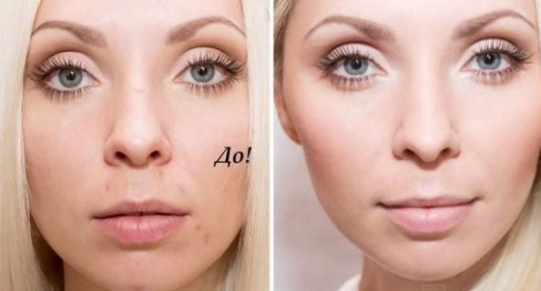 скрытые макияжем дефекты кожи